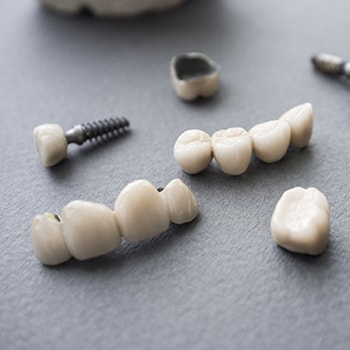 Different parts of dental crowns and bridges