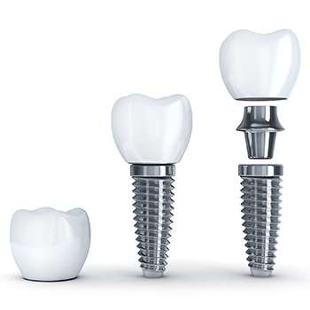 The different parts to a dental implant to replace missing teeth
