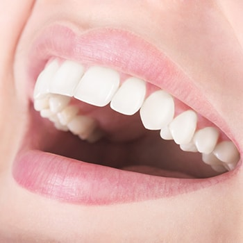 A smile with healthy gums from periodontal therapy, a part of our Lewis Center Dental Services