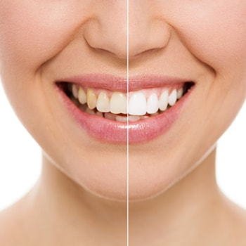Before and after of a smile getting teeth whitening