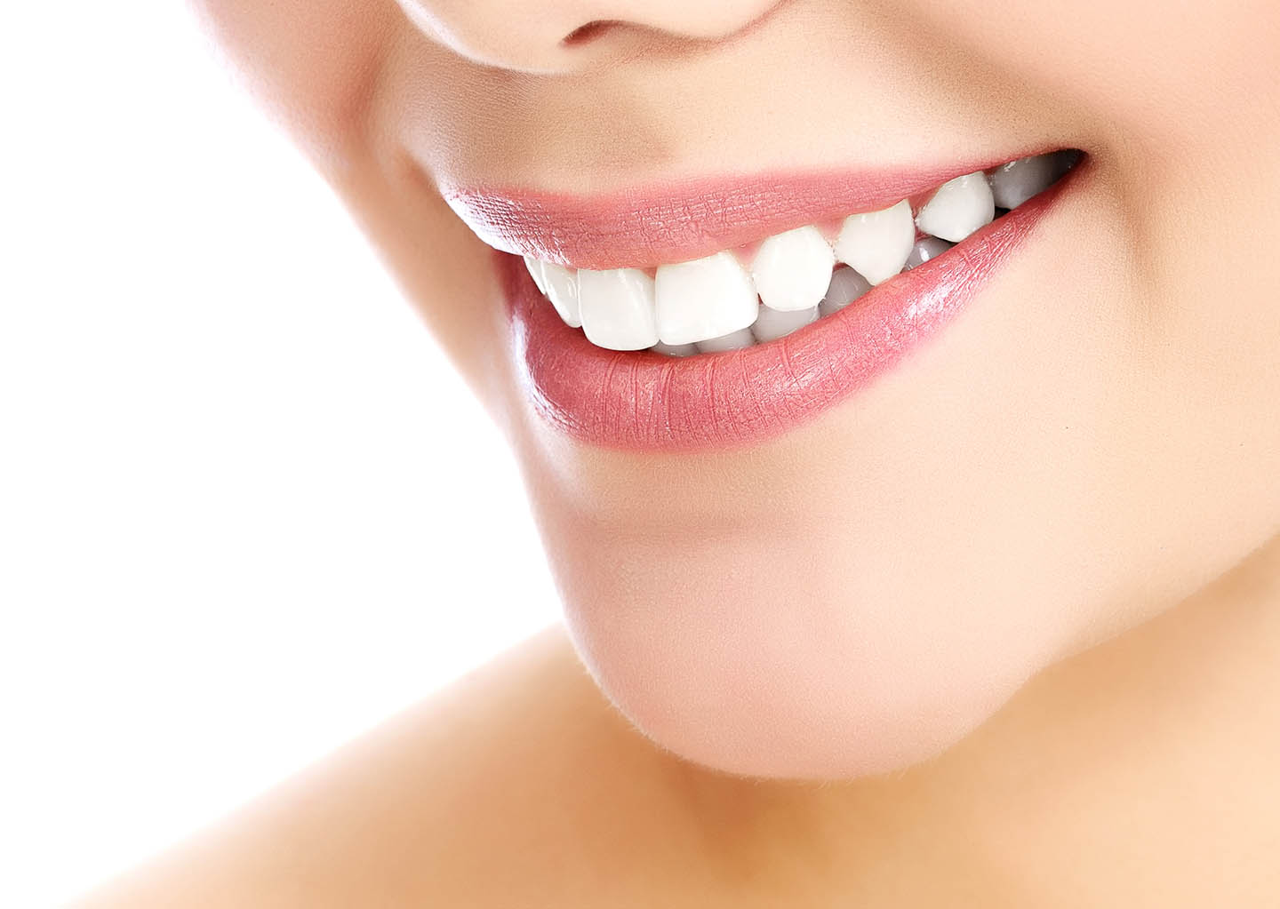 Porcelain Veneers at Olentangy Modern Dental