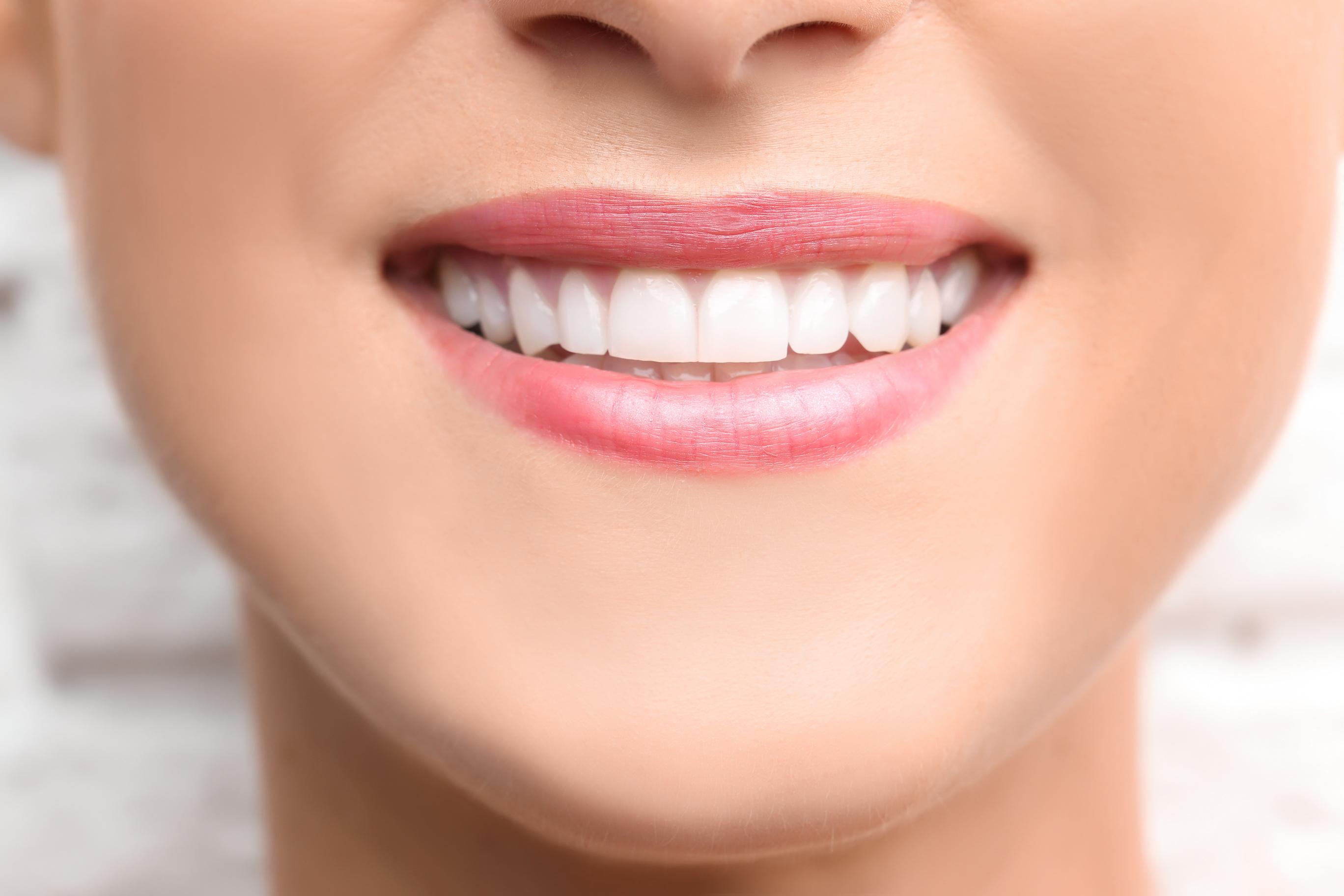 Dental Bonding at Olentangy Modern Dental
