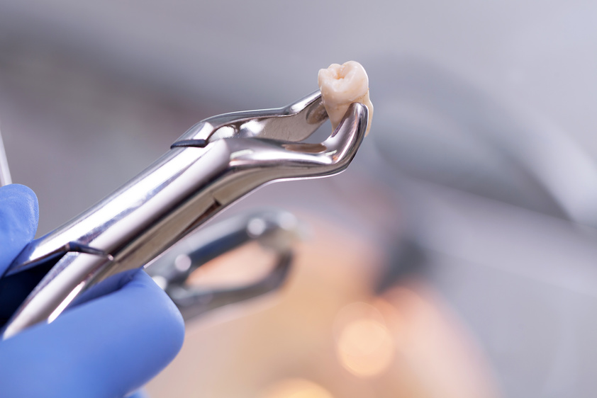 Root Canal Therapy at Olentangy Modern Dental