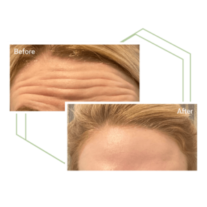 Before and after of a woman's forehead with BOTOX