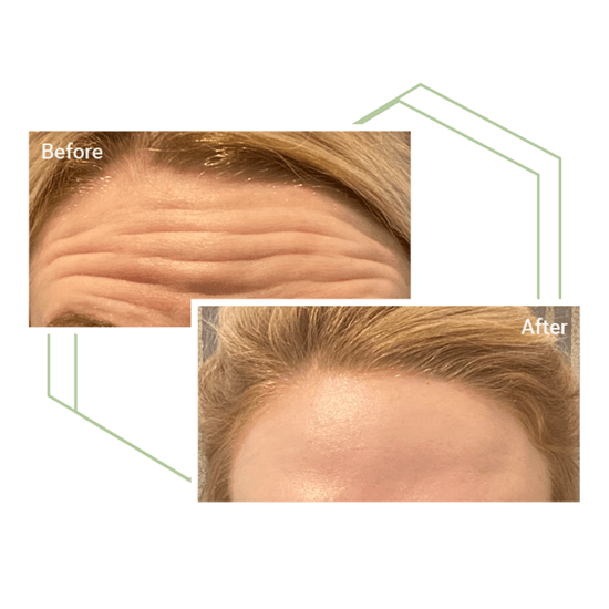 Before and after of a woman's forehead with BOTOX®
